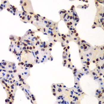 GNB2L1 Antibody gallery image 2