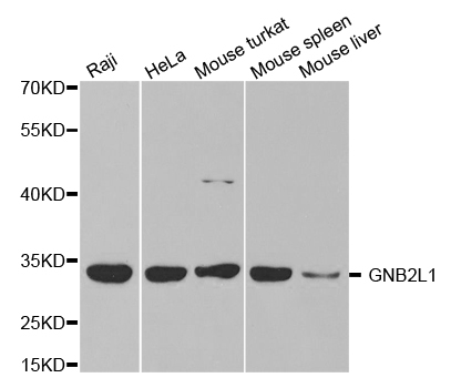 GNB2L1 Antibody gallery image 1
