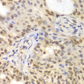 GNB2L1 Antibody gallery image 5