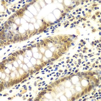 GNB2L1 Antibody gallery image 4