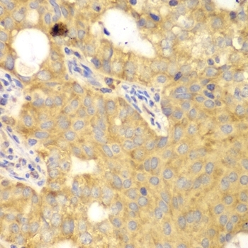 GNB2L1 Antibody gallery image 7