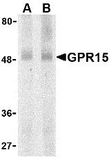 GPR15 Antibody gallery image 1