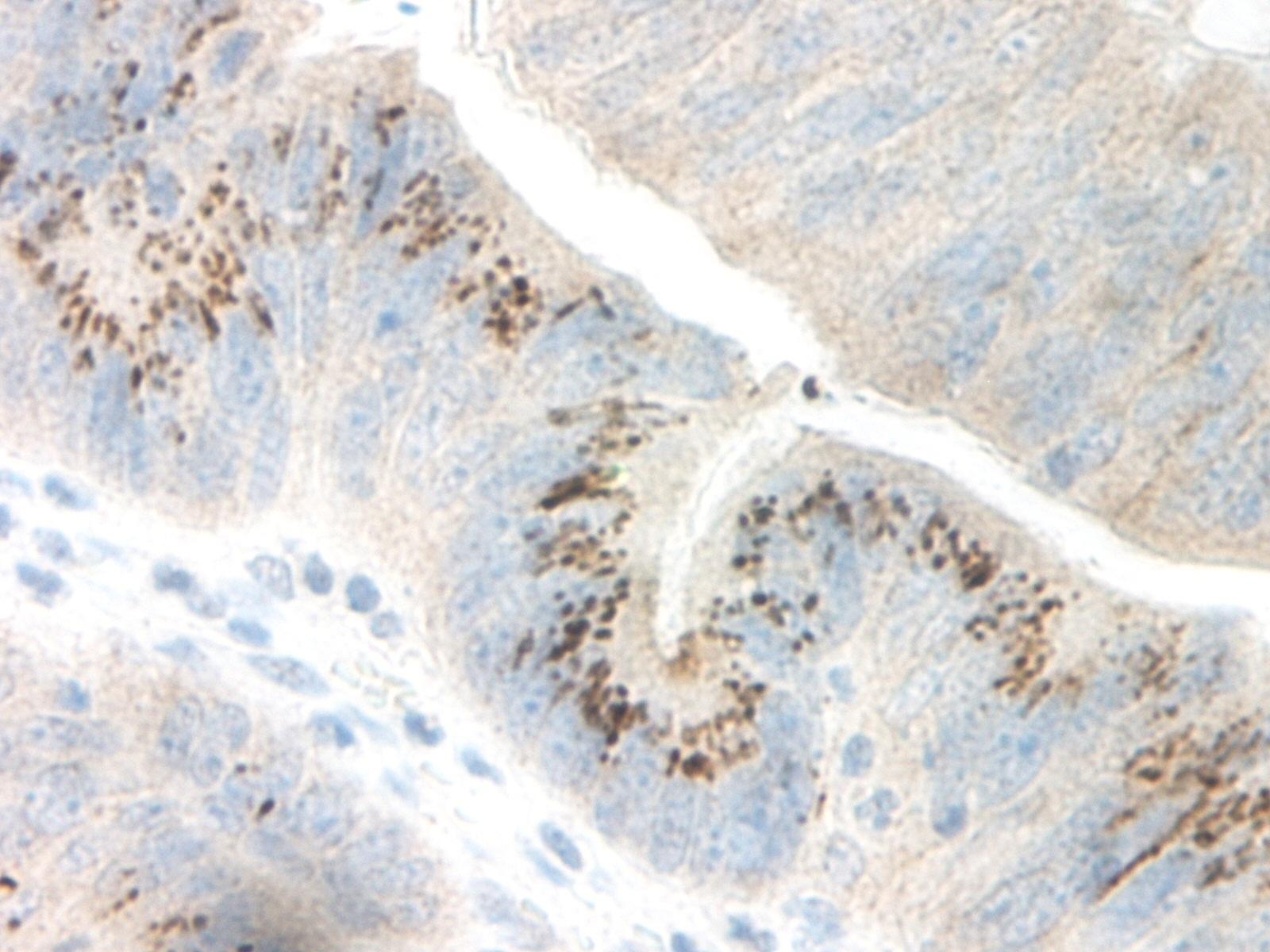 GRO Gamma Antibody gallery image 2