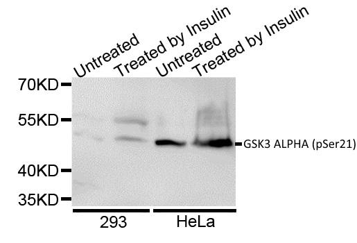 GSK3 Alpha (pSer21) Antibody gallery image 1