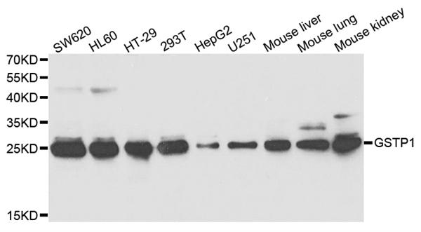 GSTP1 Antibody gallery image 1