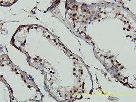 GTF2H1 Antibody | 1F12-1B5 gallery image 2