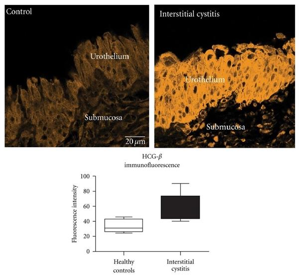 hCG Antibody | INN-hCG-22 gallery image 1
