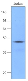 Heat Shock Protein 40 Antibody | k1C7 gallery image 1