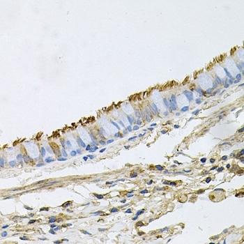 Heat Shock Protein 90 Alpha Antibody gallery image 3