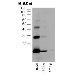 Hemoglobin Antibody | 5988 gallery image 1