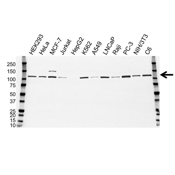 Hexokinase 1 Antibody (PrecisionAb<sup>TM</sup> Antibody) gallery image 1