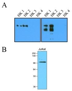 Hexokinase 1 & 2 Antibody | 1A7 gallery image 1