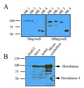 Hexokinase 1 Antibody | 4D7 gallery image 2