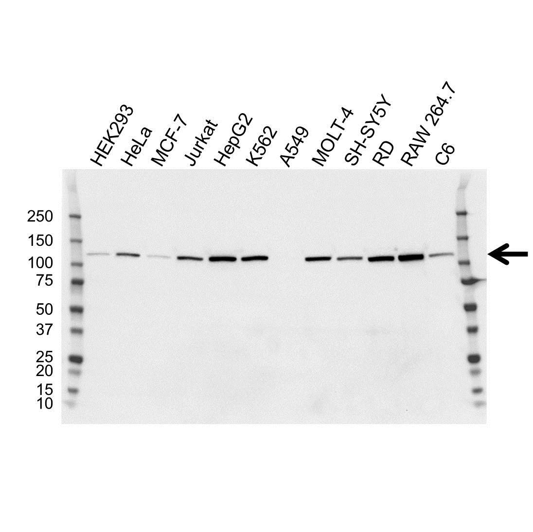 Hexokinase 2 Antibody (PrecisionAb<sup>TM</sup> Antibody) | OTI4C5 gallery image 1