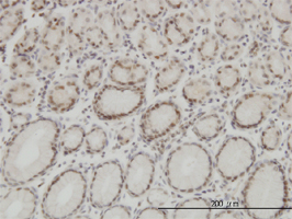 High Mobility Group Protein B1 Antibody | 1E6-E10 gallery image 1