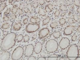 High Mobility Group Protein B1 Antibody | 1E6-E10 gallery image 1
