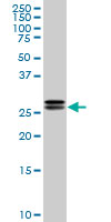 High Mobility Group Protein B2 Antibody   3E5 gallery image 1