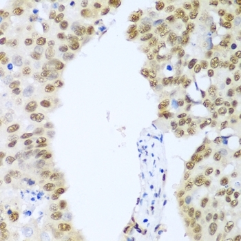 Histone Deacetylase 1 Antibody gallery image 2