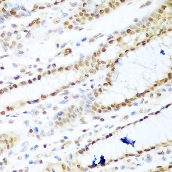 Histone Deacetylase 1 Antibody gallery image 5