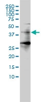 Histone Deacetylase 11 Antibody | 1C2-2G5 gallery image 1