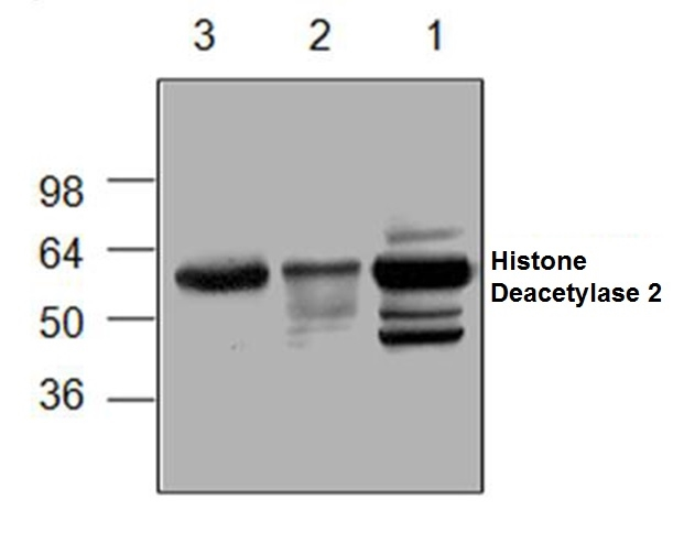 Histone Deacetylase 2 Antibody gallery image 1