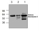 Histone Deacetylase 2 Antibody thumbnail image 1