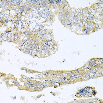 Histone Deacetylase 3 Antibody gallery image 4