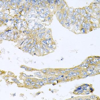 Histone Deacetylase 3 Antibody gallery image 4