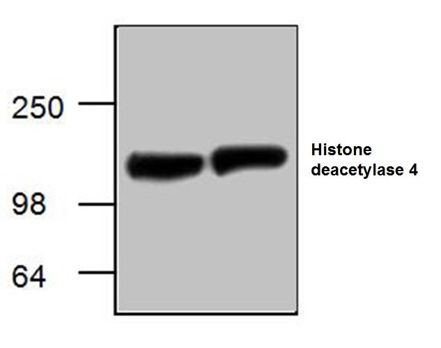 Histone Deacetylase 4 Antibody gallery image 1