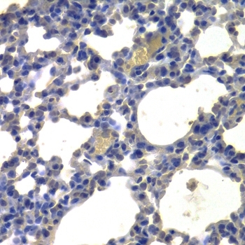 Histone Deacetylase 5 Antibody gallery image 3