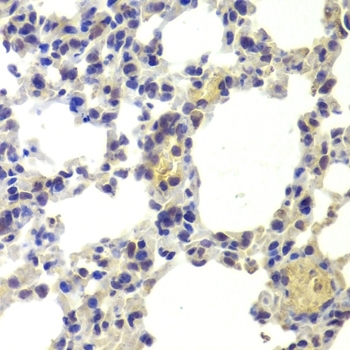 Histone Deacetylase 5 Antibody gallery image 4