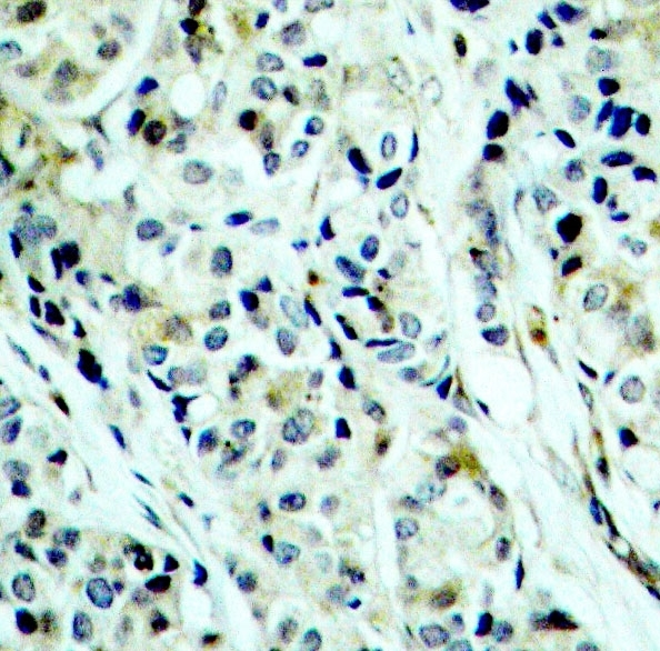 Histone Deacetylase 5 (pSer498) Antibody gallery image 2