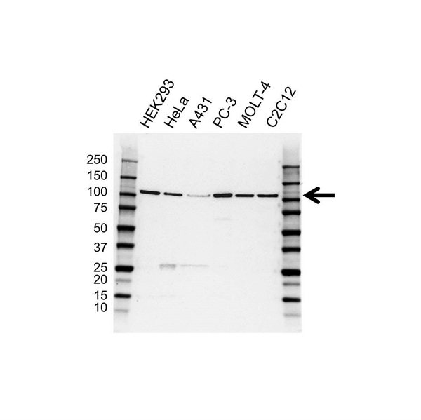 Hrs / HGS Antibody (PrecisionAb<sup>TM</sup> Antibody) gallery image 1