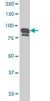 IFI16 Antibody | 2C2 gallery image 1