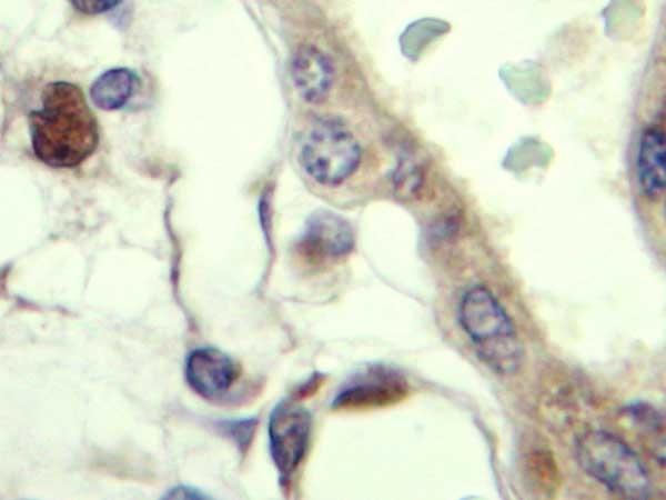 IGF-II Antibody gallery image 2