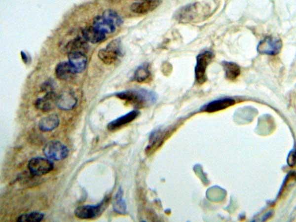 IGF-II Antibody gallery image 3