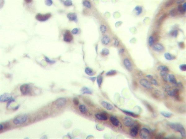 IGF-II Antibody gallery image 1