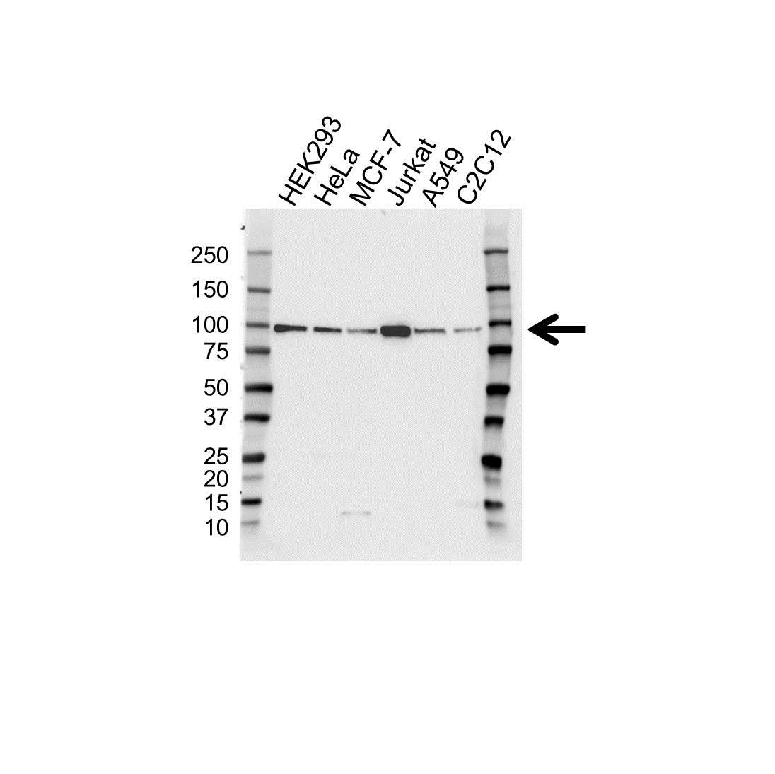 IGF1R Antibody (PrecisionAb<sup>TM</sup> Antibody) gallery image 1