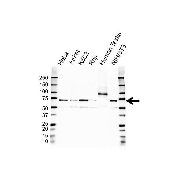 IGF2BP-1 Antibody (PrecisionAb<sup>TM</sup> Antibody) gallery image 1