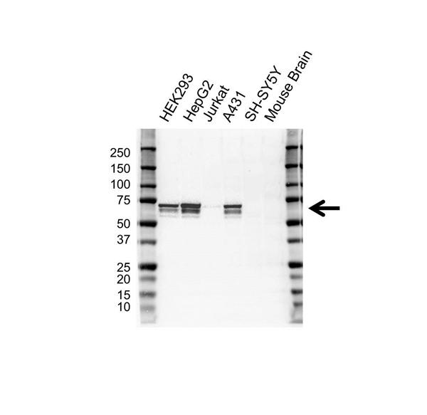 IGF2BP-2 Antibody (PrecisionAb<sup>TM</sup> Antibody) | OTI3C8 gallery image 1