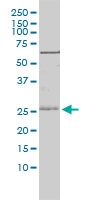 Igfbp-6 Antibody | 1H2-2D10 gallery image 1