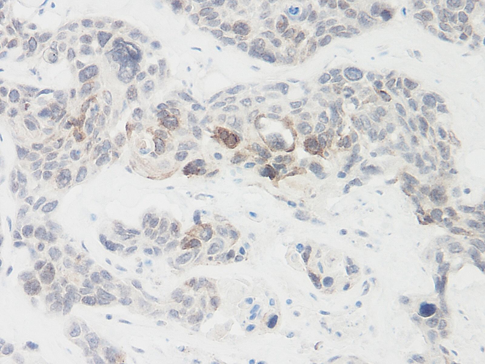 Igfbp-9 Antibody gallery image 1