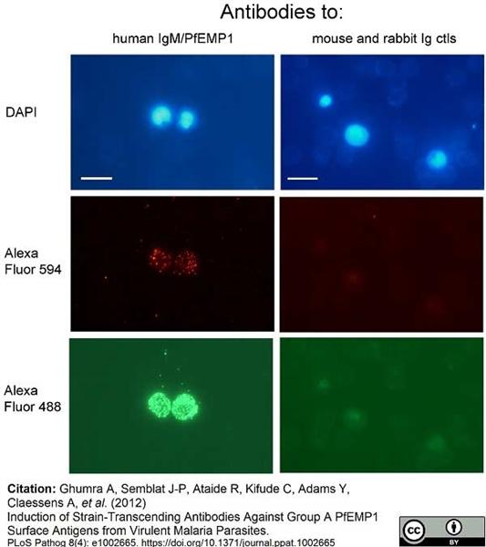 IgM Antibody | M15/8 gallery image 2