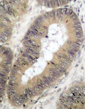 IKK (pThr23) Antibody gallery image 2