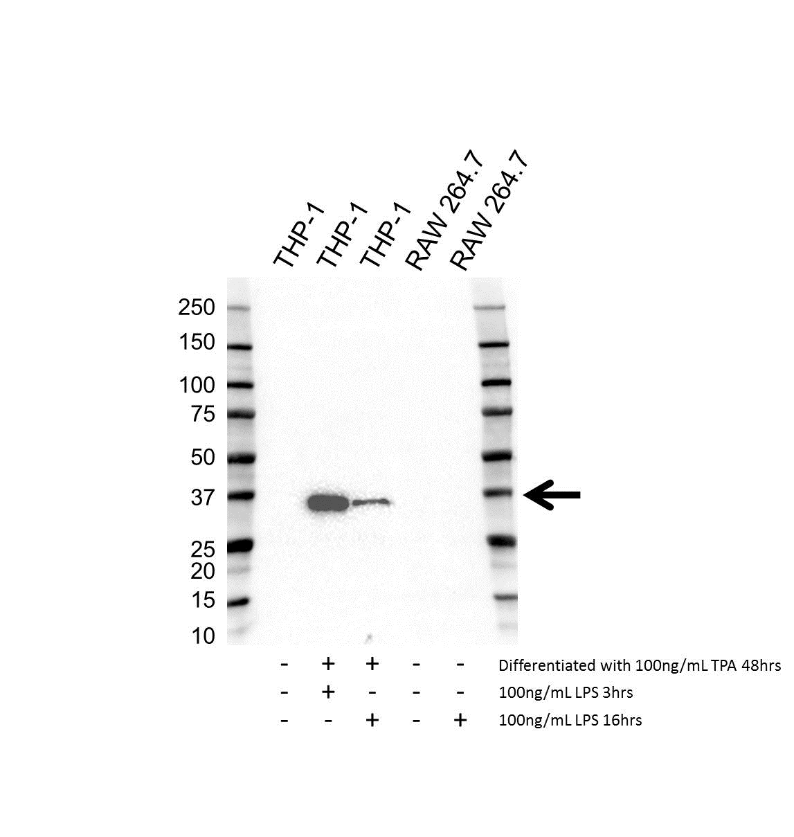 IL-1 Beta Antibody (PrecisionAb<sup>TM</sup> Antibody) | 1A7 gallery image 1