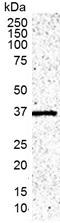 IL-1 Beta Antibody | 5C10 gallery image 1