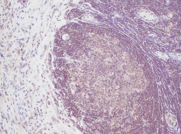 IL-2 Antibody gallery image 1
