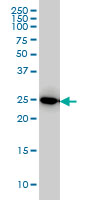 IL-27 Antibody | 3F12 gallery image 1