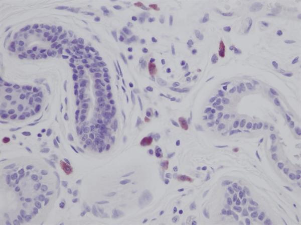 IL-8 Antibody gallery image 1