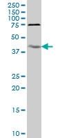 IL18BP Antibody | 2A9 gallery image 1
